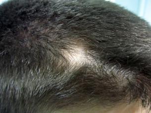 Алопеция (Alopecia areata)