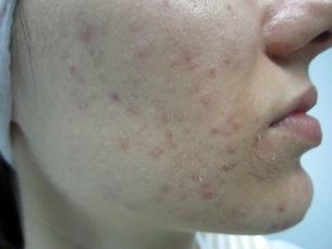 Младежкo акне (Acne vulgaris)